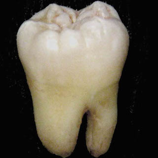 人間の歯を食べると意外な栄養? マクドナルド騒動の危険なもしも…